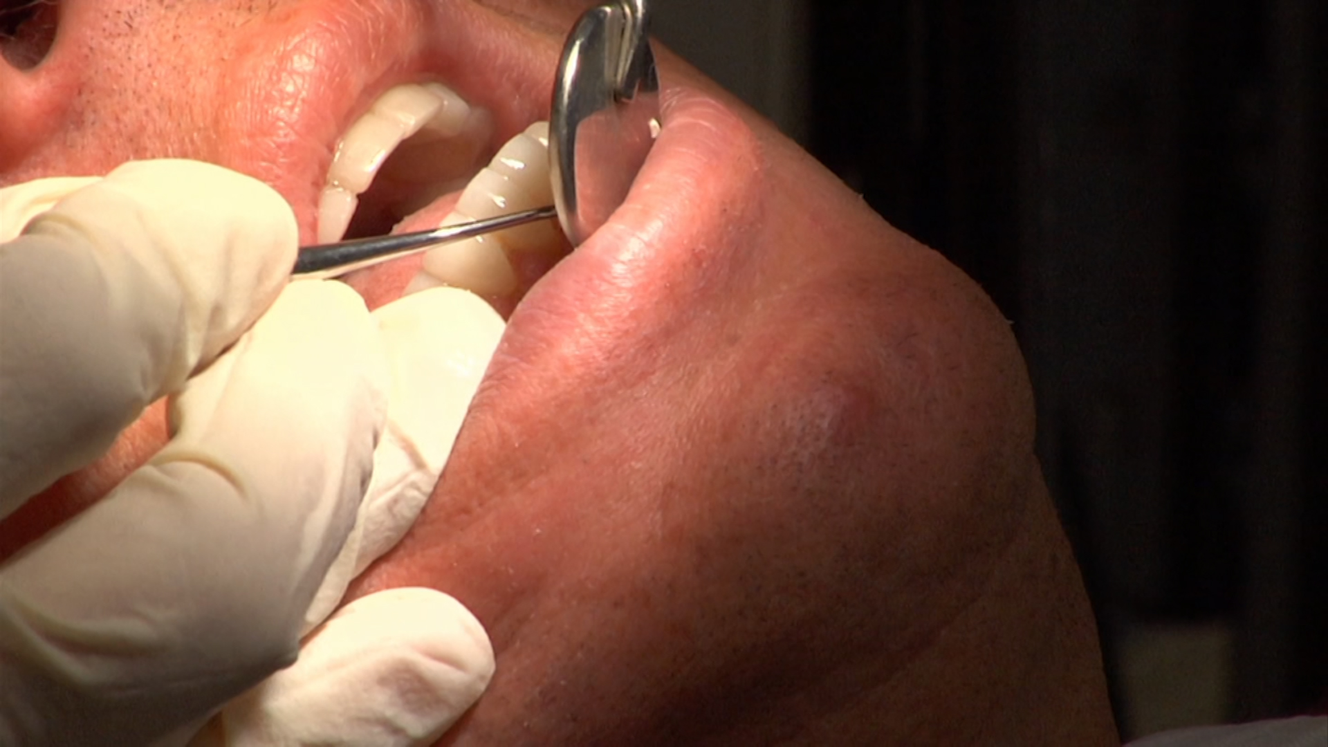 The Role of Dentists in the Growing Opioid Addiction Crisis